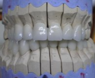 Zirconia crowns and bridges - Top Prices! - Dental Tourism Hungary