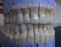 Zirconia crowns and bridges - Dentistry in Hungary