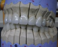 Get low-cost Zirconia crowns in Hungary!