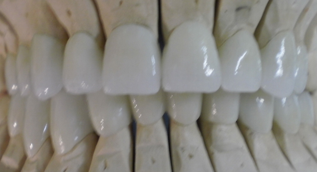 zirconia crowns for top prices get the best offer at dental tourism hungary